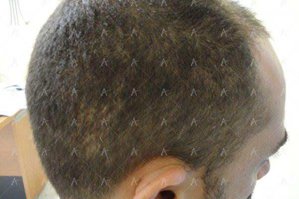 Εικόνα λήπτριας και δότριας περιοχής 2 μήνες μετά την επέμβαση 6/7 ασθενής μεταμόσχευσης μαλλιών