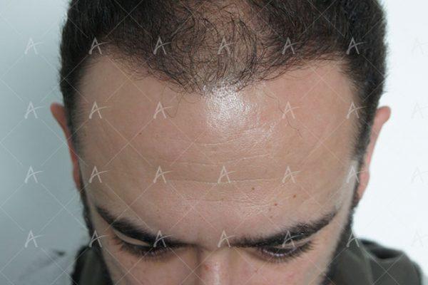 Αποτέλεσμα μεταμόσχευσης μαλλιών μετά τη 2η συνεδρία 2/3 ασθενής μεταμόσχευσης μαλλιών