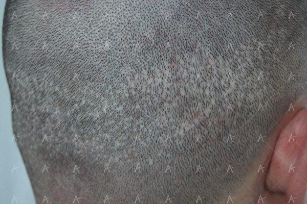 Κούρεμα δότριας περιοχής 1/4 ασθενής μεταμόσχευσης μαλλιών