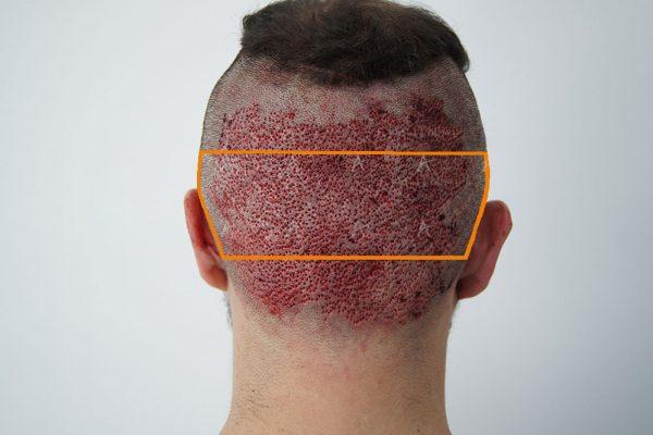 Αποτελέσματα αμέσως μετά τη μεταμόσχευση 3500 FUs 4/4 ασθενής μεταμόσχευσης μαλλιών