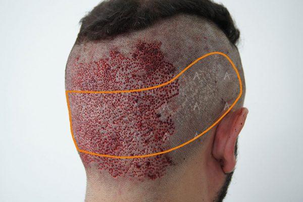 Αποτελέσματα αμέσως μετά τη μεταμόσχευση 3500 FUs 3/4 ασθενής μεταμόσχευσης μαλλιών