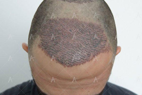 Εικόνα λήπτριας και δότριας περιοχής την επόμενη ημέρα από την επέμβαση 2/9 ασθενής μεταμόσχευσης μαλλιών
