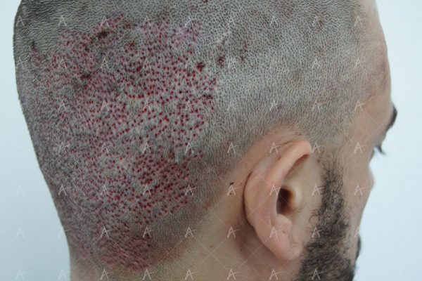 Εικόνα λήπτριας και δότριας περιοχής την επόμενη ημέρα από την επέμβαση 7/9 ασθενής μεταμόσχευσης μαλλιών