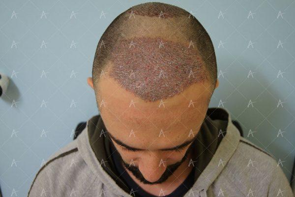 Εικόνα λήπτριας και δότριας περιοχής τη 2η μετεγχειρητική ημέρα 1/6 ασθενής μεταμόσχευσης μαλλιών