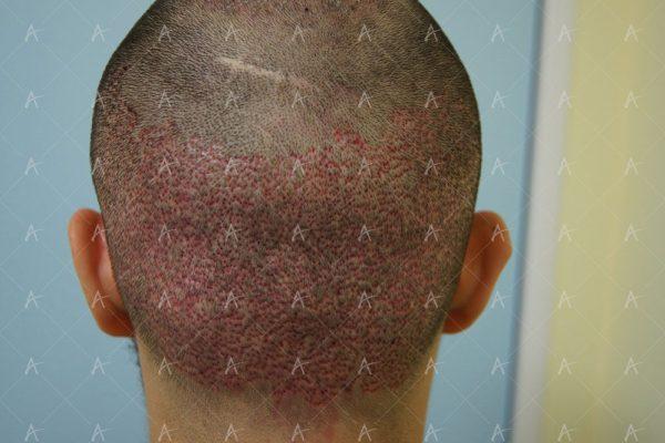 Εικόνα λήπτριας και δότριας περιοχής τη 2η μετεγχειρητική ημέρα 5/6 ασθενής μεταμόσχευσης μαλλιών