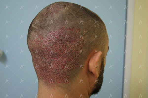 Εικόνα λήπτριας και δότριας περιοχής τη 2η μετεγχειρητική ημέρα 4/6 ασθενής μεταμόσχευσης μαλλιών