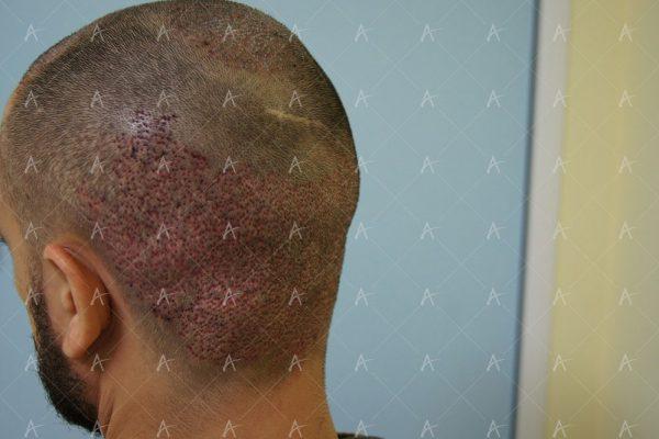 Εικόνα λήπτριας και δότριας περιοχής τη 2η μετεγχειρητική ημέρα 3/6 ασθενής μεταμόσχευσης μαλλιών