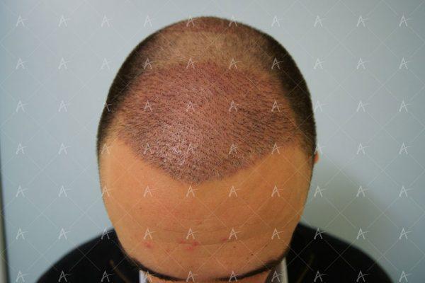 Εικόνα λήπτριας και δότριας περιοχής την 7η ημέρα 1/6 ασθενής μεταμόσχευσης μαλλιών
