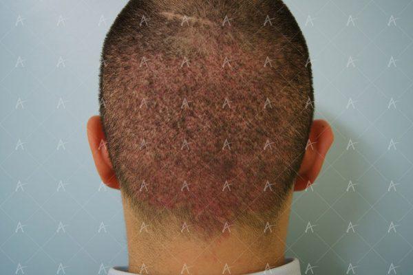 Εικόνα λήπτριας και δότριας περιοχής την 7η ημέρα 5/6 ασθενής μεταμόσχευσης μαλλιών