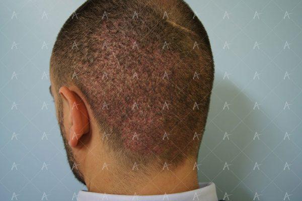 Εικόνα λήπτριας και δότριας περιοχής την 7η ημέρα 3/6 ασθενής μεταμόσχευσης μαλλιών