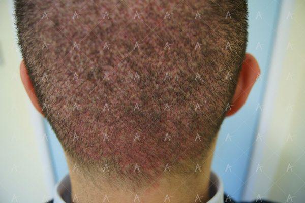 Εικόνα λήπτριας και δότριας περιοχής την 7η ημέρα 6/6 ασθενής μεταμόσχευσης μαλλιών