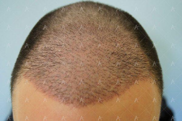 Εικόνα λήπτριας και δότριας περιοχής την 12η μέρες μετά 1/5 ασθενής μεταμόσχευσης μαλλιών