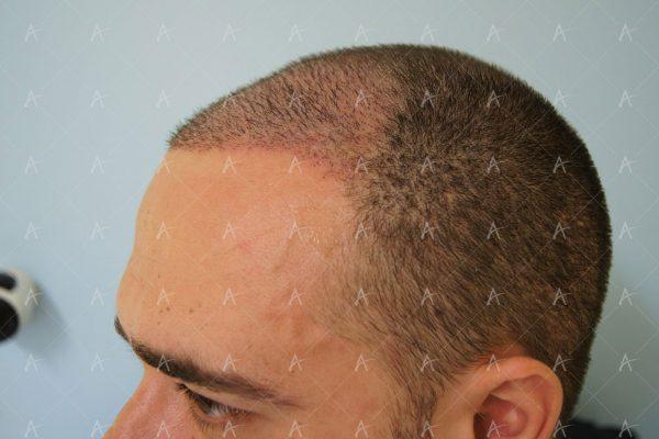 Εικόνα λήπτριας και δότριας περιοχής την 12η μέρες μετά 3/5 ασθενής μεταμόσχευσης μαλλιών