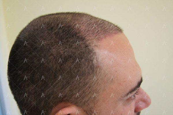 Εικόνα λήπτριας και δότριας περιοχής την 12η μέρες μετά 4/5 ασθενής μεταμόσχευσης μαλλιών