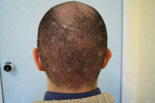 Εικόνα λήπτριας και δότριας περιοχής την 12η μέρες μετά 5/5 ασθενής μεταμόσχευσης μαλλιών