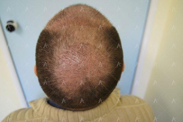 Εικόνα λήπτριας και δότριας περιοχής την 12η μέρες μετά 2/5 ασθενής μεταμόσχευσης μαλλιών