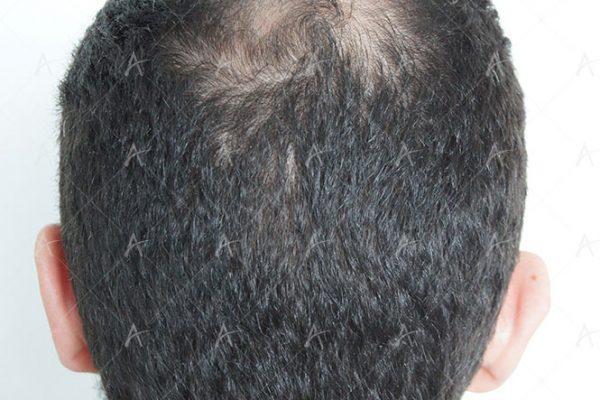 Αποτέλεσμα μεταμόσχευσης μαλλιών μετά τη 2η συνεδρία 3/3 ασθενής μεταμόσχευσης μαλλιών