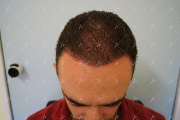 Εικόνα λήπτριας και δότριας περιοχής 12 μήνες μετά τη Μεταμόσχευση Μαλλιών FUE 5/6 ασθενής μεταμόσχευσης μαλλιών