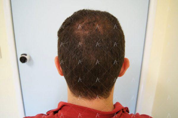 Εικόνα λήπτριας και δότριας περιοχής 12 μήνες μετά τη Μεταμόσχευση Μαλλιών FUE 1/6 ασθενής μεταμόσχευσης μαλλιών