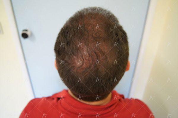 Εικόνα λήπτριας και δότριας περιοχής 12 μήνες μετά τη Μεταμόσχευση Μαλλιών FUE 6/6 ασθενής μεταμόσχευσης μαλλιών