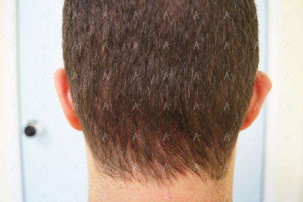 Εικόνα λήπτριας και δότριας περιοχής 12 μήνες μετά τη Μεταμόσχευση Μαλλιών FUE 2/6 ασθενής μεταμόσχευσης μαλλιών