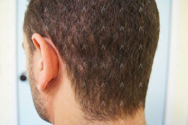 Εικόνα λήπτριας και δότριας περιοχής 12 μήνες μετά τη Μεταμόσχευση Μαλλιών FUE 3/6 ασθενής μεταμόσχευσης μαλλιών