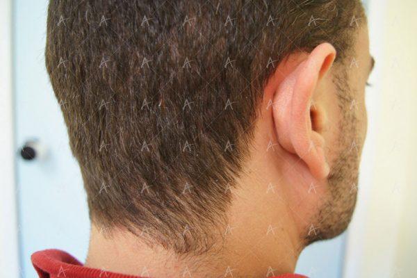 Εικόνα λήπτριας και δότριας περιοχής 12 μήνες μετά τη Μεταμόσχευση Μαλλιών FUE 4/6 ασθενής μεταμόσχευσης μαλλιών