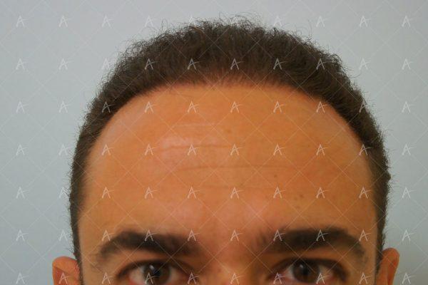 Εικόνα λήπτριας και δότριας περιοχής 18 μήνες μετά τη Μεταμόσχευση Μαλλιών FUE 2/6 ασθενής μεταμόσχευσης μαλλιών
