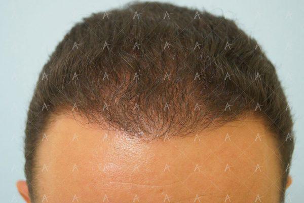 Εικόνα λήπτριας και δότριας περιοχής 18 μήνες μετά τη Μεταμόσχευση Μαλλιών FUE 1/6 ασθενής μεταμόσχευσης μαλλιών