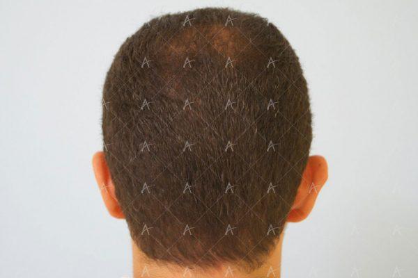 Εικόνα λήπτριας και δότριας περιοχής 18 μήνες μετά τη Μεταμόσχευση Μαλλιών FUE 4/6 ασθενής μεταμόσχευσης μαλλιών
