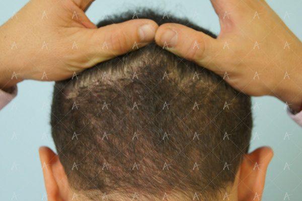 Εικόνα λήπτριας και δότριας περιοχής 18 μήνες μετά τη Μεταμόσχευση Μαλλιών FUE 6/6 ασθενής μεταμόσχευσης μαλλιών