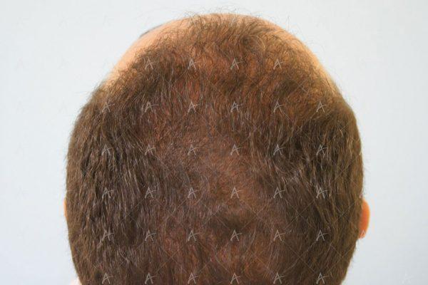 Εικόνα λήπτριας και δότριας περιοχής 18 μήνες μετά τη Μεταμόσχευση Μαλλιών FUE 3/6 ασθενής μεταμόσχευσης μαλλιών