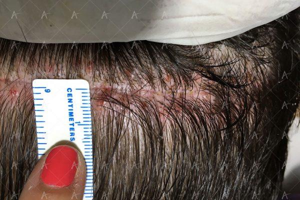 Επούλωση FUT 3/7 ασθενής μεταμόσχευσης μαλλιών