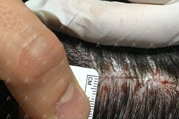 Επούλωση FUT 7/7 ασθενής μεταμόσχευσης μαλλιών