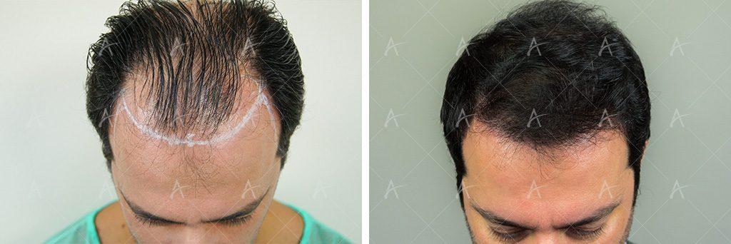 Σχεδιασμός και αποτέλεσμα μεταμόσχευσης μαλλιών του Στέλιου Καλαθά