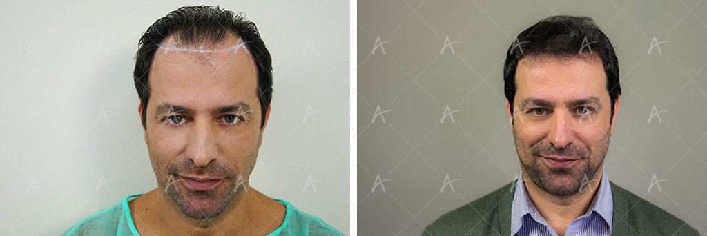 πύκνωση μαλλιών μετά τη μεταμόσχευση Στέλιος Καλαθάς