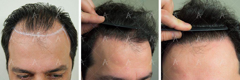 Εικόνες από τη μεταμόσχευση μαλλιών του Στέλιου Καλαθά