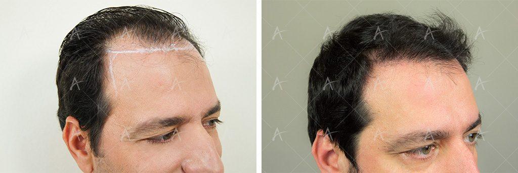 αποτέλεσμα μεταμόσχευσης μαλλιών του Στέλιου Καλαθά