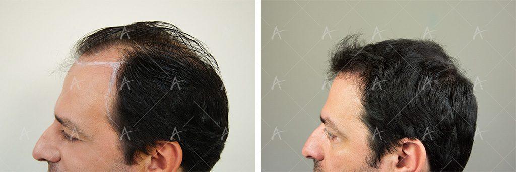 Πλαϊνή όψη από τη μεταμόσχευση μαλλιών του Στέλιου Καλαθά
