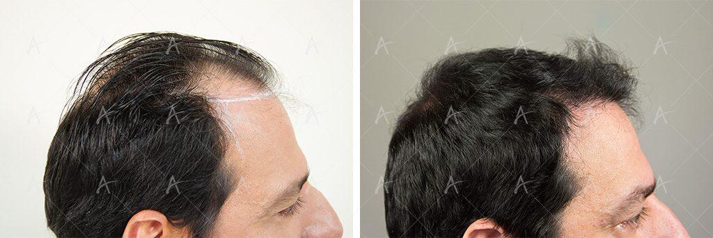 Πριν και μετά τη Μεταμόσχευση Μαλλιών Στέλιος Καλαθάς