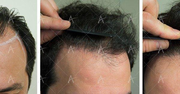 έρευνα για τη μεταμόσχευση μαλλιών παρουσιάζει παγκόσμια αύξηση στις επεμβάσεις
