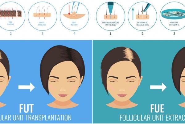 Μεταμόσχευση μαλλιών στις γυναίκες καταλληλότητα ασθενούς