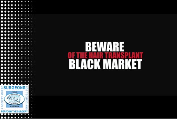 Προειδοποίηση καταναλωτων από την ISHRS για το black market στη μεταμόσχευση μαλλιών