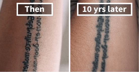 AHC_tattoo_after_10_years