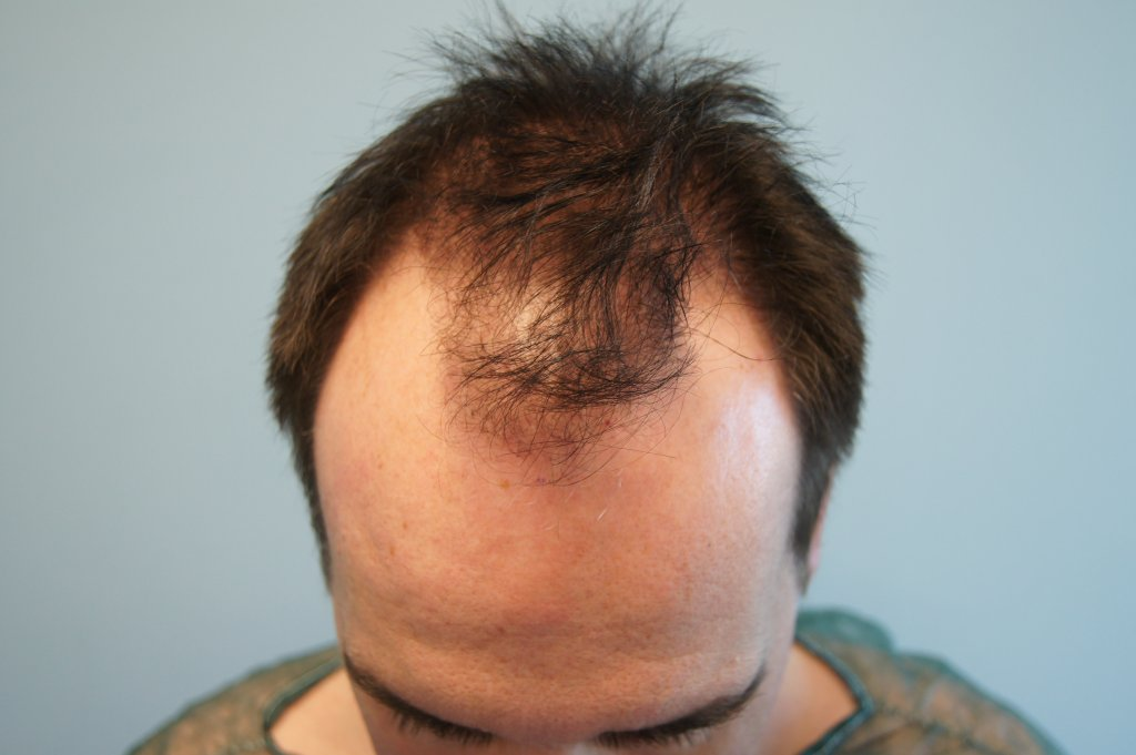 3500 fus - before hair transplantation