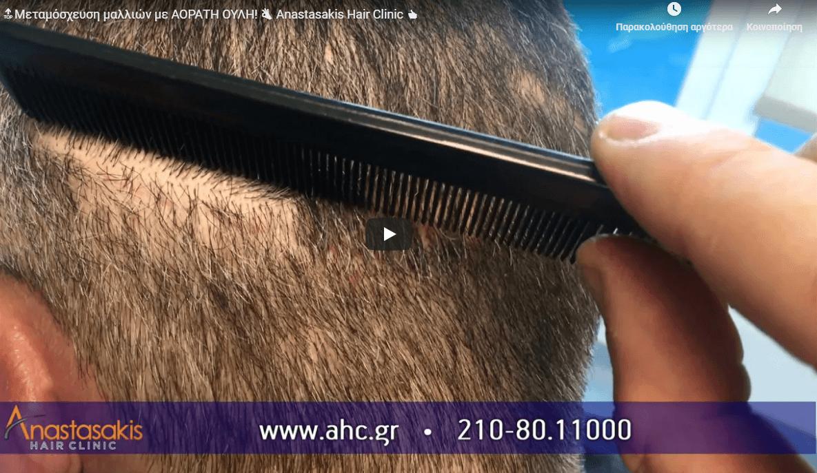 αόρατη ουλη στην Anastasakis Hair Clinic