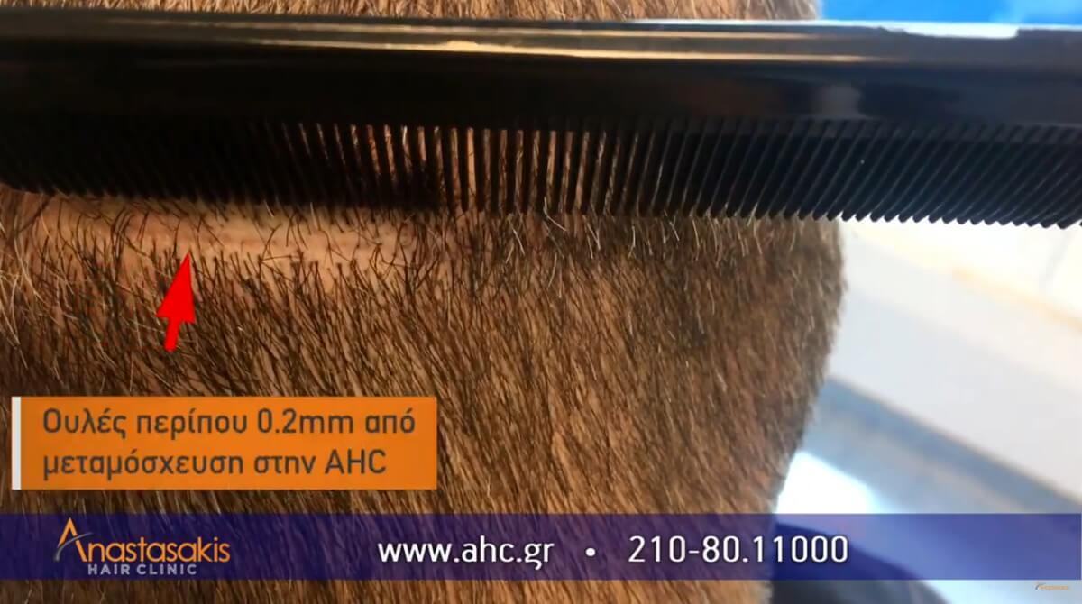 νεα ουλη από μεταμοσχευση στην Anastasakis Hair Clinic