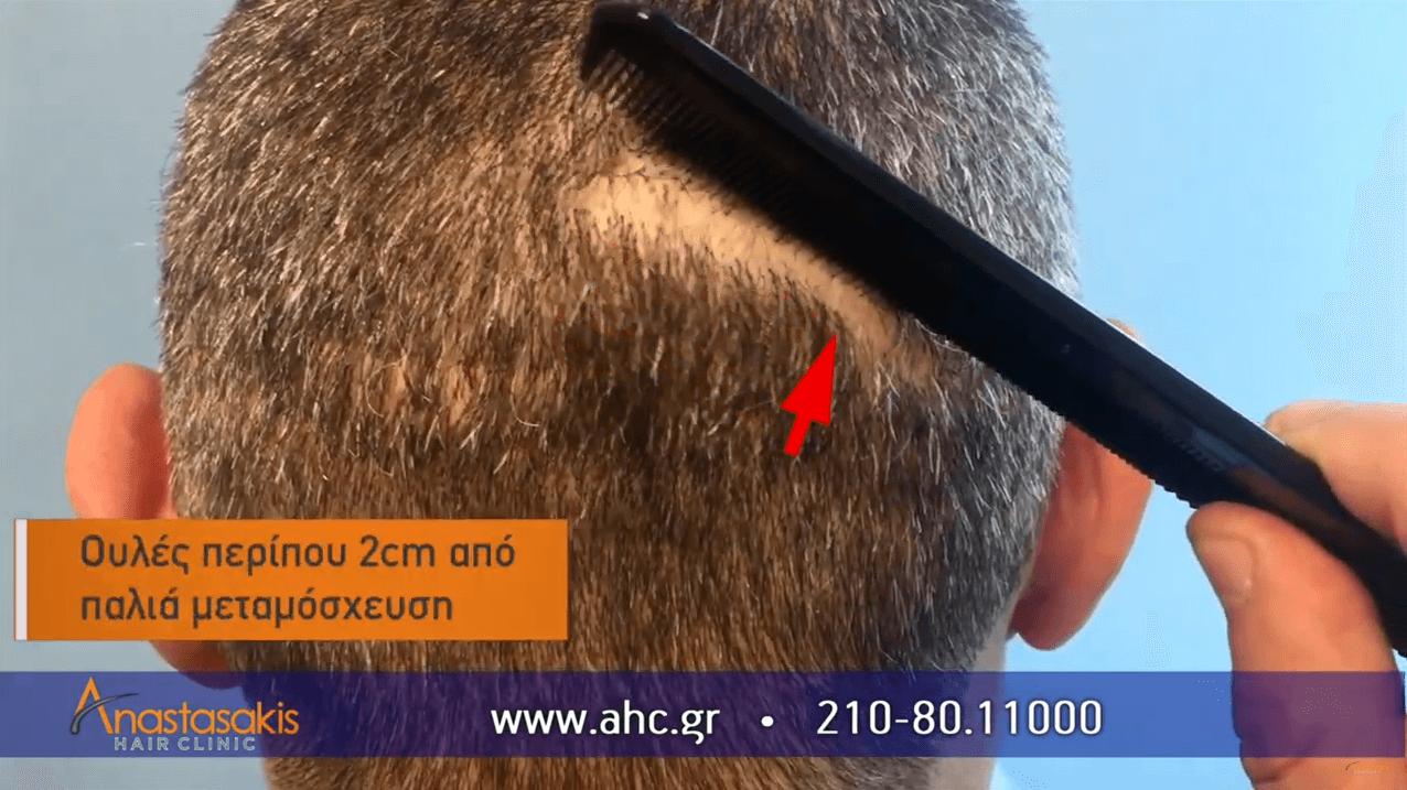 ουλη από παλια μεταμοσχευση μαλλιων