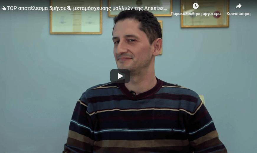 το αποτελεσμα της μεταμοσχευσης μαλλ.ιων του Παναγιωτη μετα απο 5 μηνες, μονο στην AHC