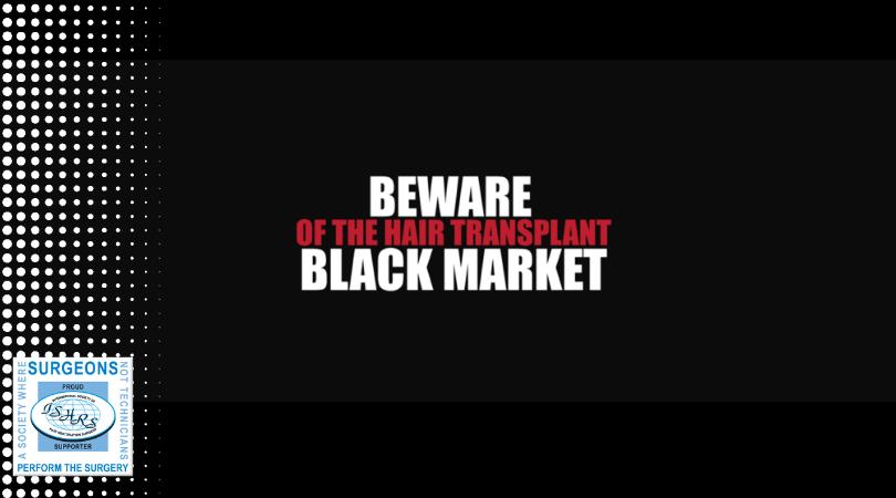 fue μεταμόσχευση μαλλιών μαύρη αγορά